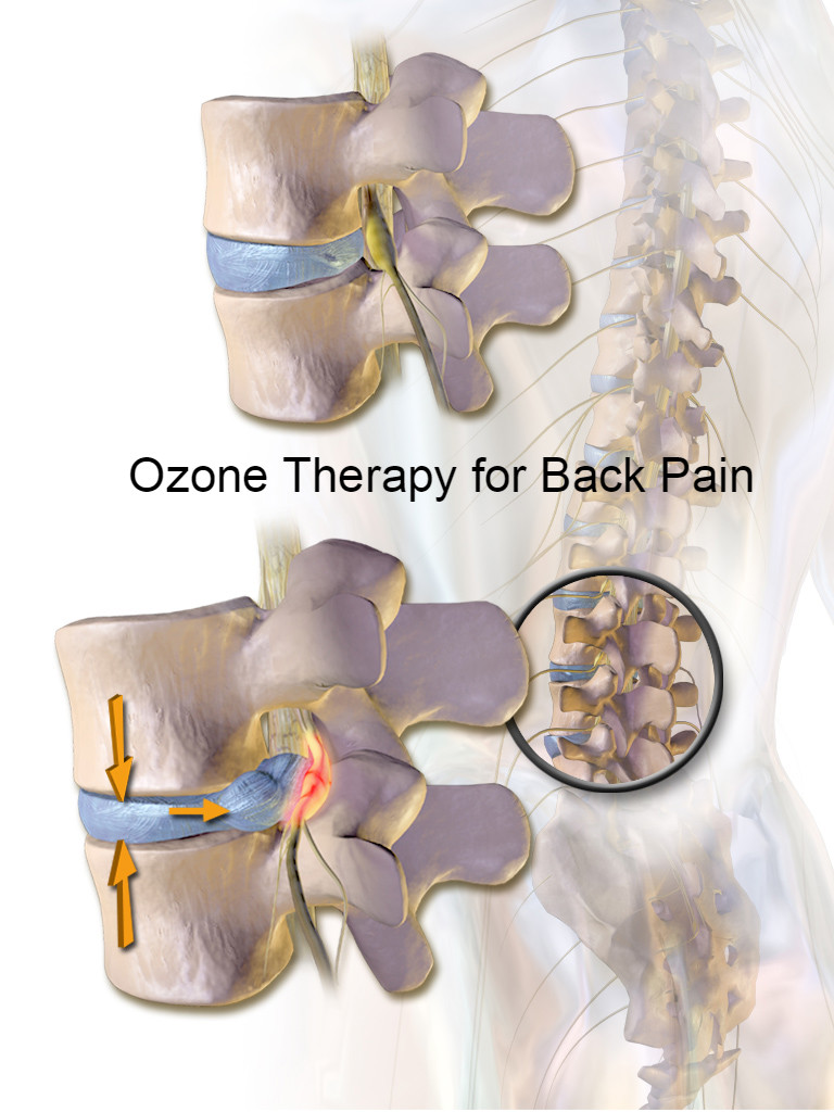 Image result for ozone spine injections