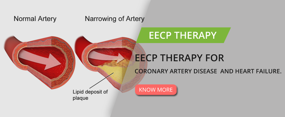 EECP Therapy for Heart Failure